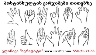 vosstanovlenie-posle-insulta-ruki